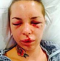 Christy Mack says she suffered severe injuries in a domestic violence dispute involving ex-boyfriend Jon Koppenhaver.