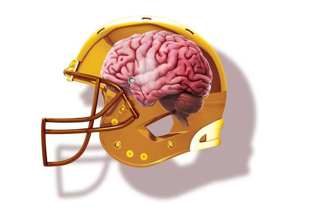 concussion editorial